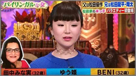 【画像】松田ゆう姫はブス&ブサイクで生意気で態度悪い?目と鼻に整形疑惑も?
