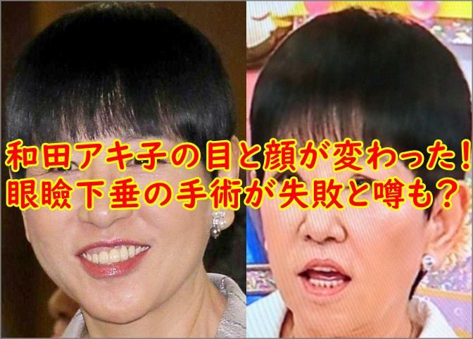 比較画像】和田アキ子目と顔が変わった?眼瞼下垂の手術が失敗と