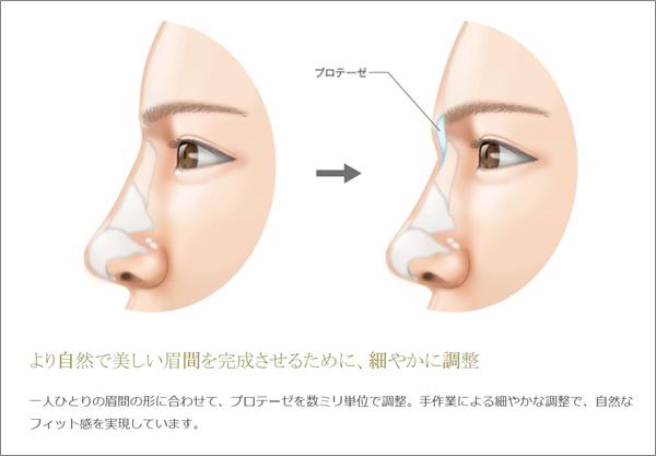 【比較画像】氷川きよし顔変わりすぎに整形外科疑惑?若い頃からの顔の変化まとめ!